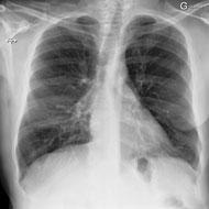 TRM en radiologie