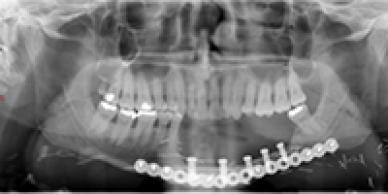 Chirurgie reconstructive maxillo-mandibulaire