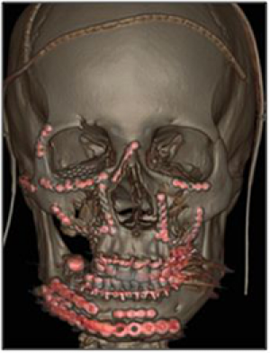 Chirurgie traumatologique