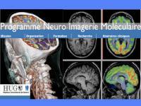 [img]Création d'un Programme de neuroimagerie moléculaire[/img]