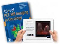 [img]Publication du premier Atlas d'imagerie  hybride PET-IRM[/img]