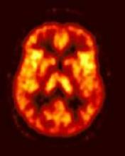 [img]Image Examen PET/CT cérébral FDG[/img]