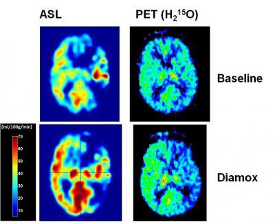 Positron emission tomography (PET) using H2O-15