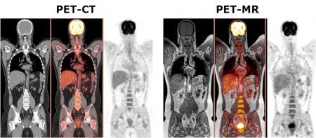 PET CT vs PET-MR