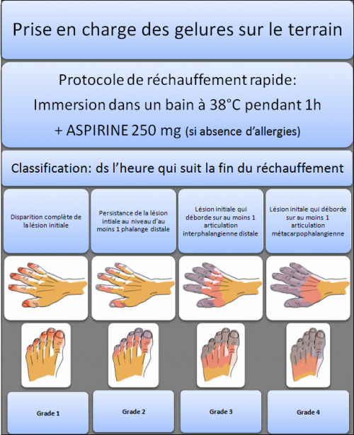 classification des gelures