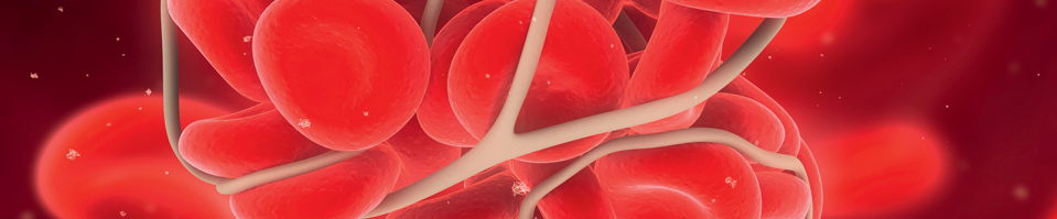 Laboratoire hémostase