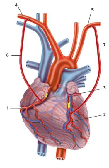 Pontages réalisés à partir des artères mammaires