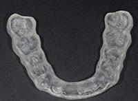 arthrose temporo-mandibulaire