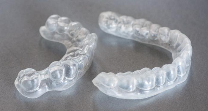 gouttières adaptées pour une fluoration efficace de vos dents.