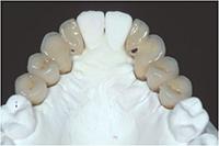 Etape 2: Préparation des futures dents