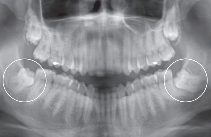 Orthopantomogramme