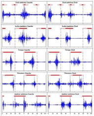 Analyse quantifiée de la marche
