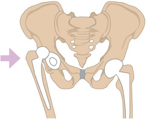 Luxation de la prothèse de la hanche droite