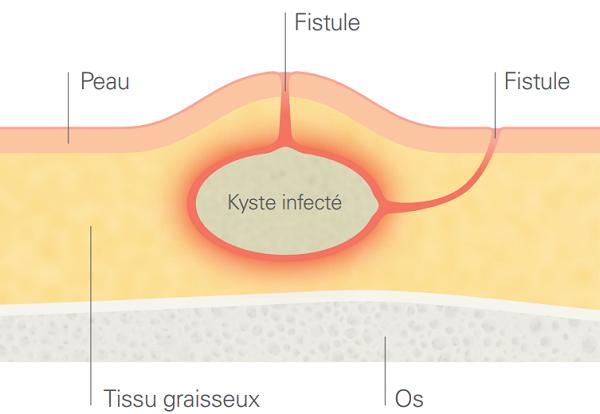 kyste infecté