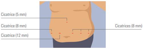 cicatrice du baypass gastrique