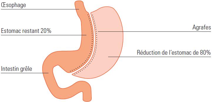 Technique de la gastrectomie longitudinale