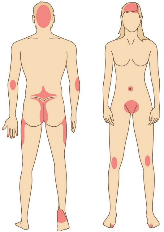 psoriasis : homme et femme