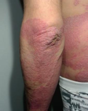 Psoriasis en plaques