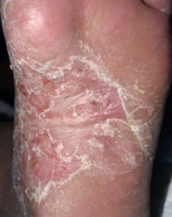 Le psoriasis palmo-plantaire