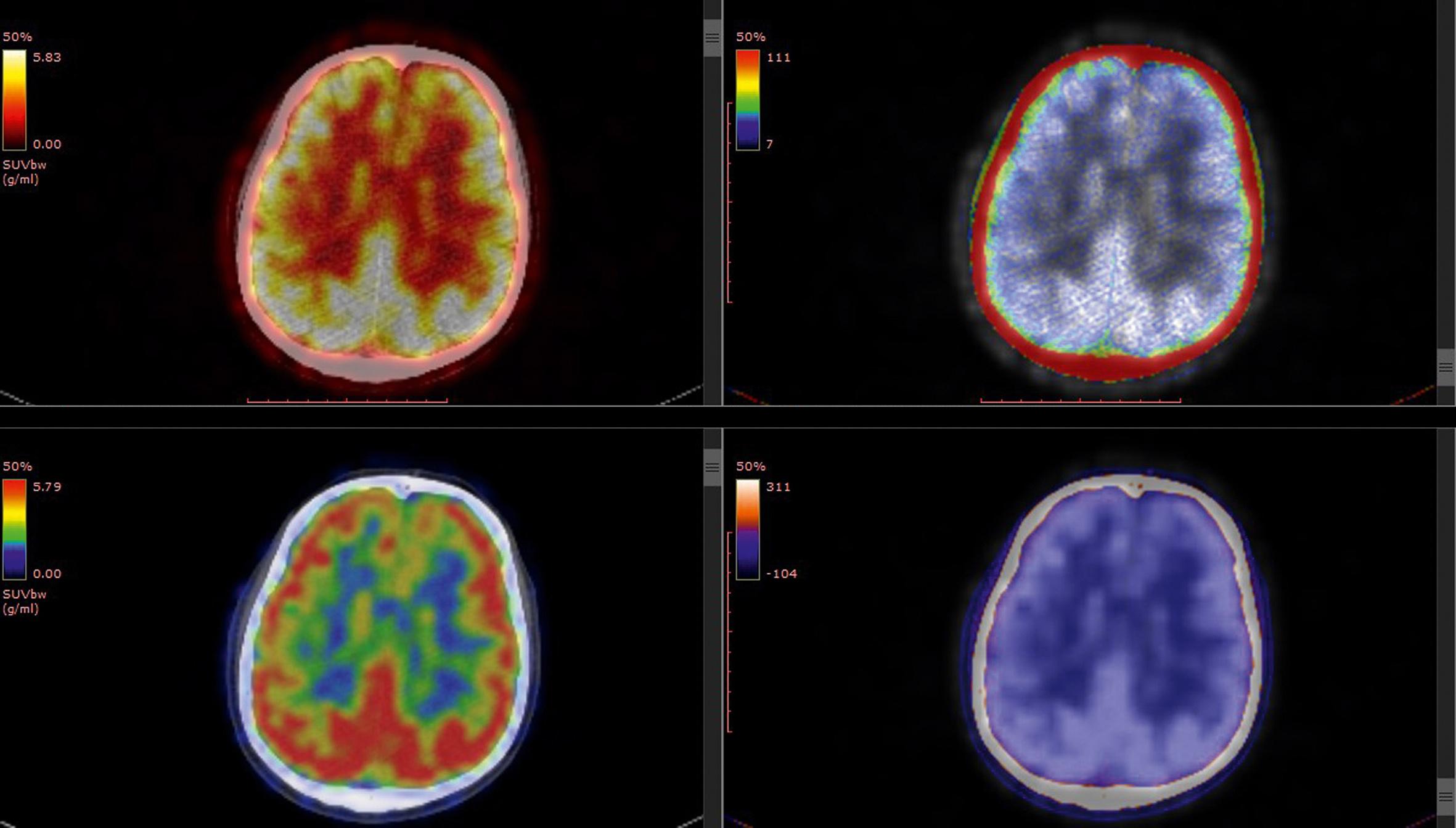 L'Aducanumab, le médicament du futur contre Alzheimer ?