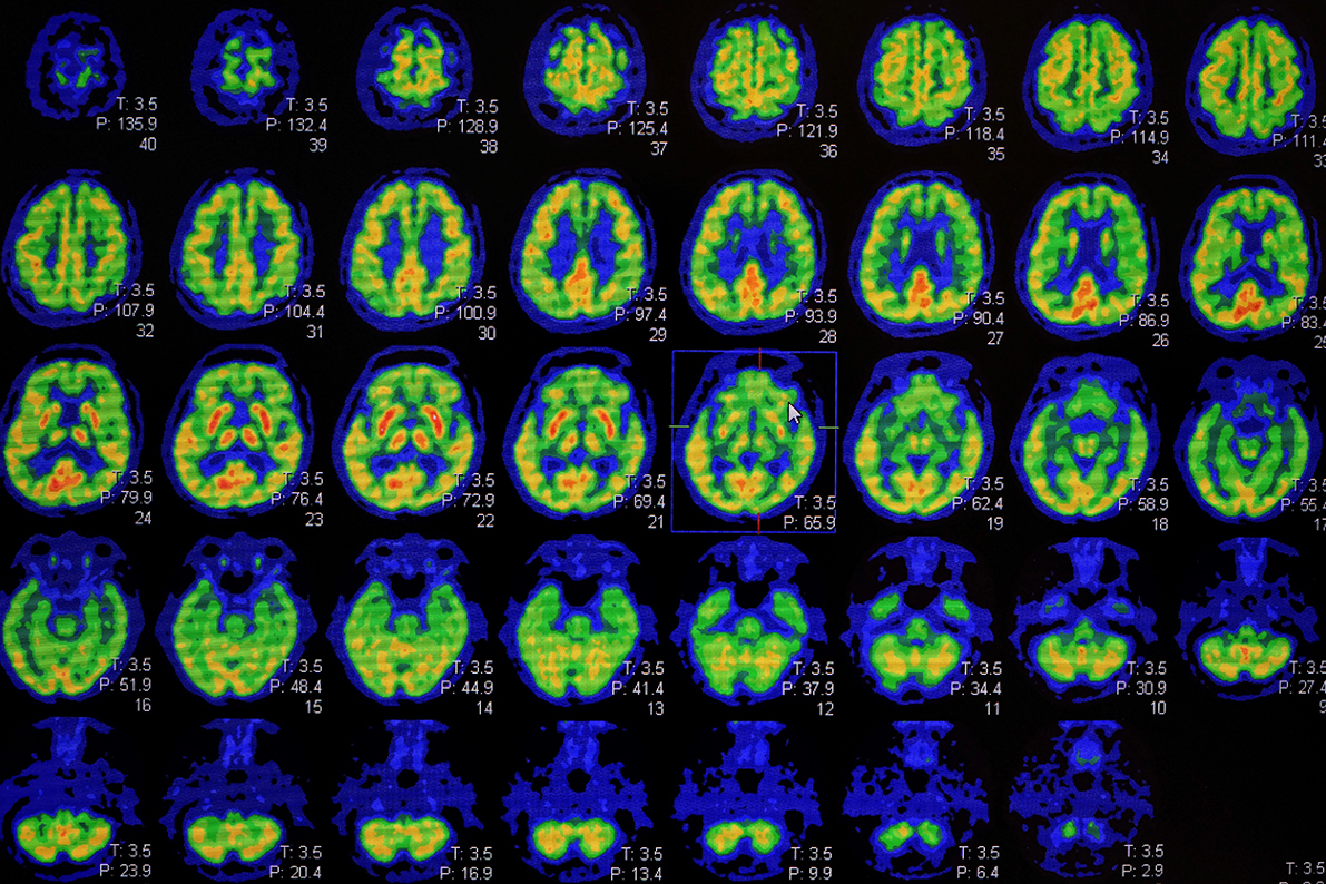 l'imagerie moléculaire (PET-scan)