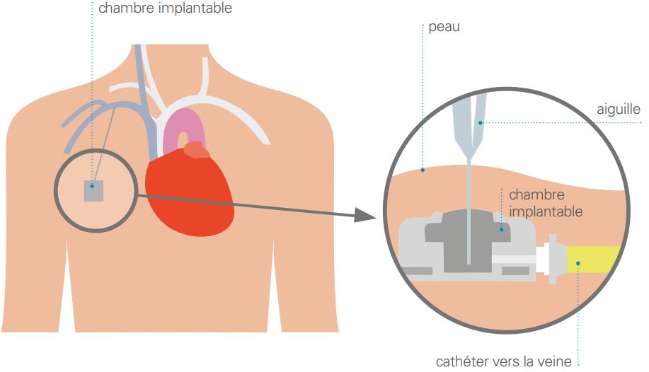 dispositif d'accès veineux implantable - DAVI
