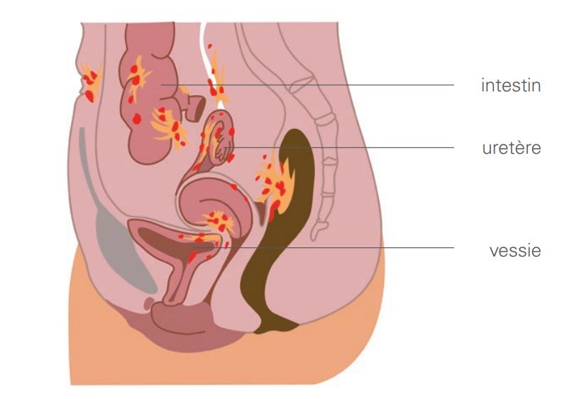 organes voisins (intestin, uretère, vessie)