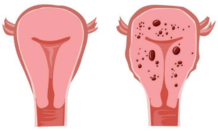 endométriose - utérus