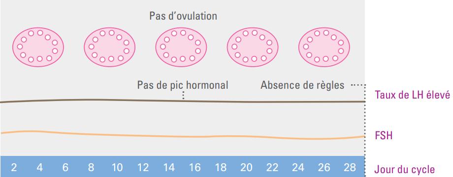 Cycle menstruel avec SOPK