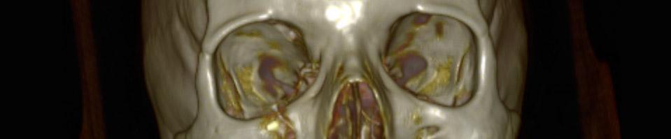 Chirurgie maxillo-faciale et buccale