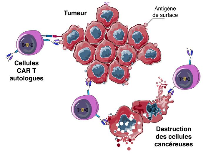 Comment les cellules CAR-T agissent-elles contre les cellules cancéreuses ?
