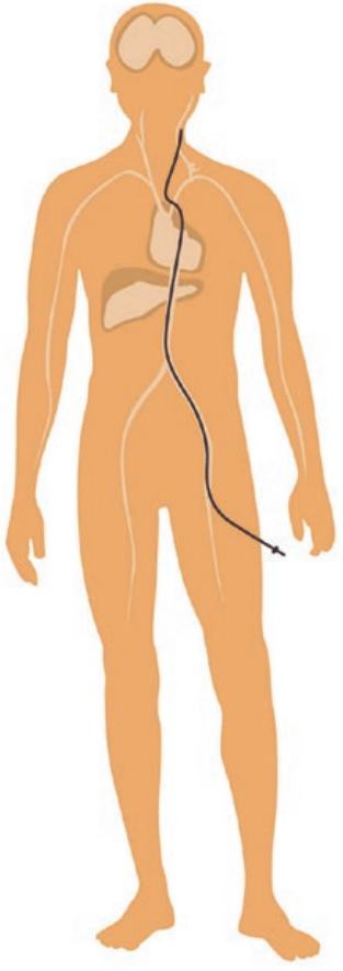 examen - angiographie cérébrale