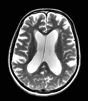 Neurochirurgie de l'hydrocéphalie
