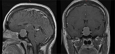 Neurochirurgie de l'hypophyse