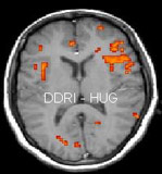 IRMf et épilepsie