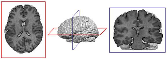 L'Imagerie par résonance magnétique (IRM) morphologique