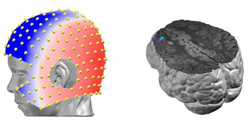 IRMf - EEG