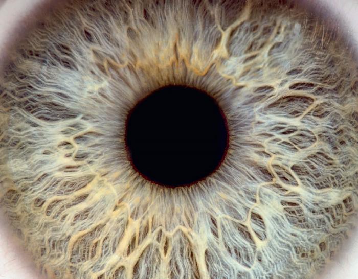 Brochure informations patients - Les traitements de l'œil au laser