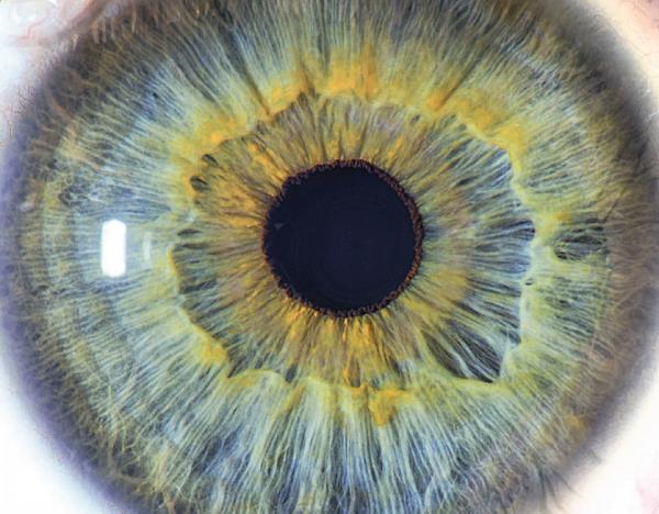 Brochure pour les patients : La cataracte secondaire