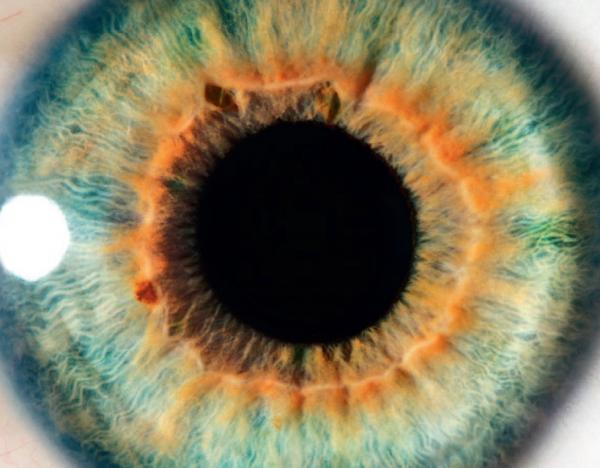 Brochure pour les patients : Le syndrome de l'oeil sec