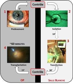 Implant rétinien et psychophysique visuelle