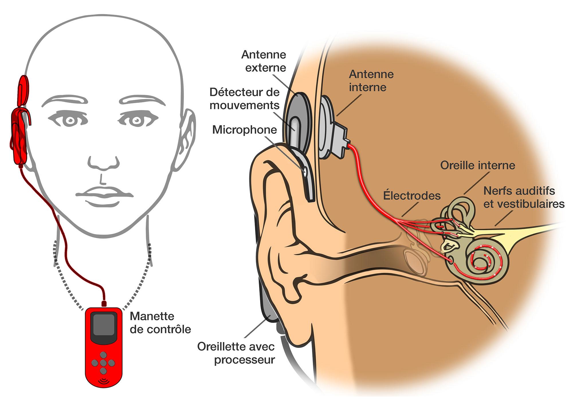 Implant vestibulaire