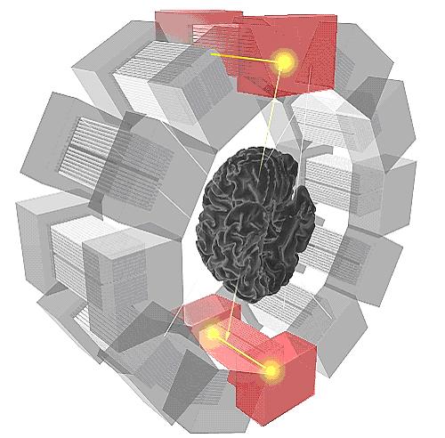 brain PET