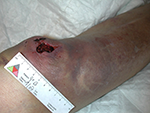 Choc sur le genou, hématome important diffus, plaie constituée de sang coagulé néccrotique