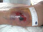 Hématome de la jambe avant drainage
