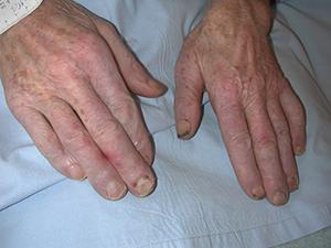 mains avec gelures chez un agriculteur