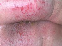 dermite prolongée avec ulcérations très douloureuses