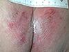 Rougeur du sacrum plus ou moins marquée