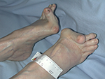 Déformations des pieds provoquant des points d'appuis avec risque de plaies
