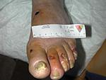 Nécroses du pied chez un patient diabétique présentant une insuffisance artérielle associée